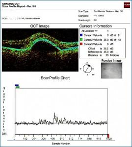 Spezielle OCT Auswertungs-software in OCT3-Auswertungs-Software: man erkennt die einzelnen Schichten der Netzhaut und eine große Abhebung.