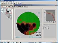Perimetrie, Computergestützte Auswertung des Gesichtsfeldes mit großem Ausfall (schwarze Fläche)