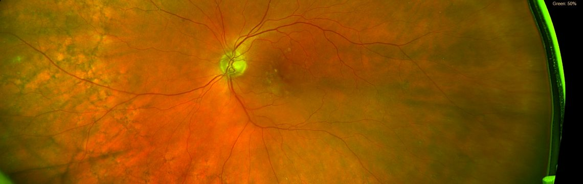 Intravitreale Injektionen - mit neuer digitaler Diagnostik