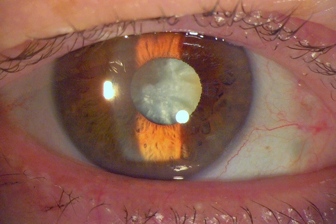 Cataract OPs - Cataract Ops - Entfernung des grauen Stars